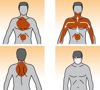 Infarto-sintomi.jpg