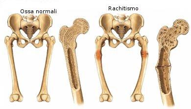 Osteomalacia : sintomi, cause, cure e prevenzione