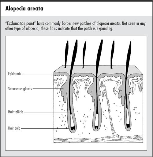 alopecia.png