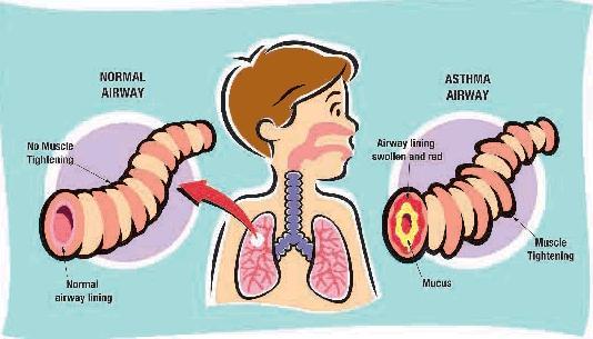 asma bambini.jpg