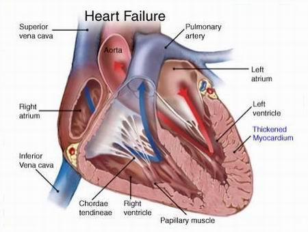 cardiaca congestizia.jpg