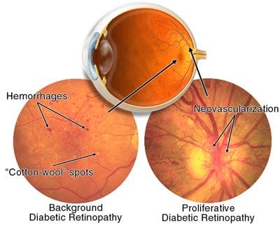 Diabete e occhi: una relazione pericolosa