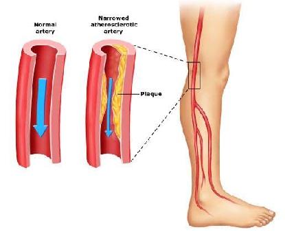 Arteriopatia periferica (PAD) : sintomi, cause, complicazioni e cure