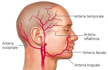 Arterite a cellule giganti : sintomi, complicazioni, cause e trattamenti