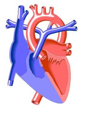Atresia polmonare.jpeg