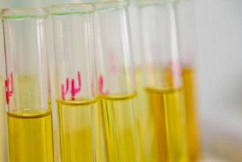 Bilirubina : analisi, valori e utlità diagnostica