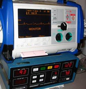 Cardioversione : informazioni  e procedura