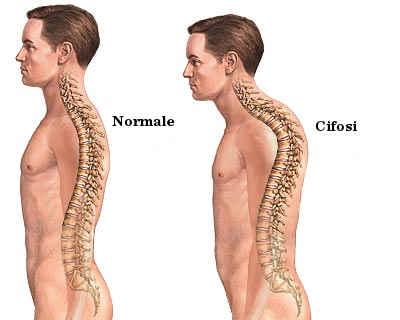Cifosi : sintomi, cause e trattamenti