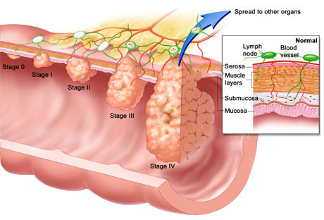 Colon Cancer Image.jpg