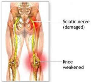 Nervo schiacciato : sintomi, cause e cure