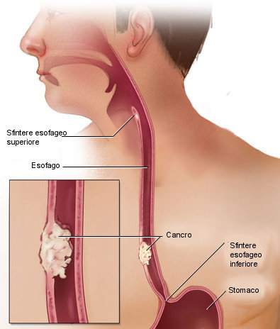 Disegno del cancro esofageo.jpg