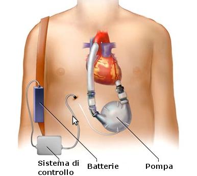 Dispositivi di assistenza ventricolare (VAD).png