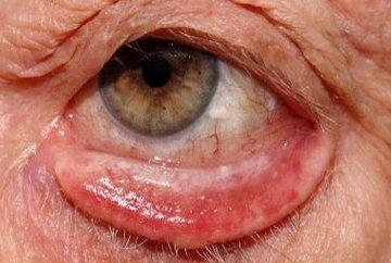 Ectropion : cause, complicazioni e chirurgia
