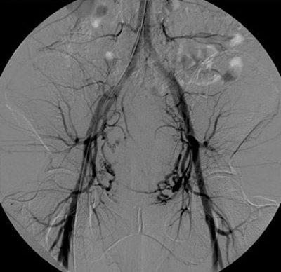 Embolizzazione dell'arteria uterina : procedura, rischi e benefici