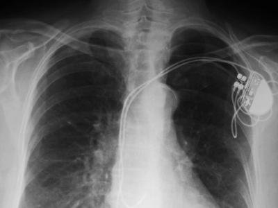 ICD su radiografia.png
