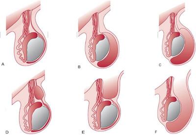 Idrocele : sintomi, cause e cure