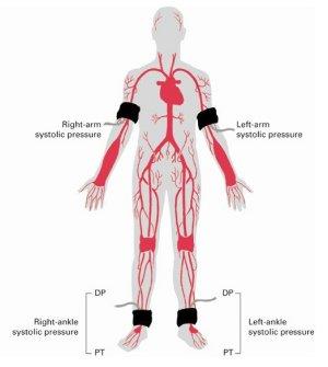 Indice caviglia-brachiale.jpeg