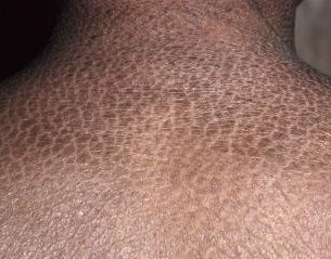 Ittiosi vulgaris : sintomi, segni, cause, diagnosi e trattamenti