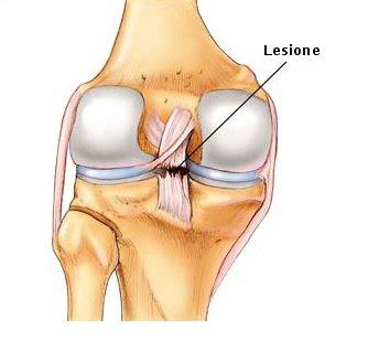 Lesione del legamento crociato posteriore.jpeg