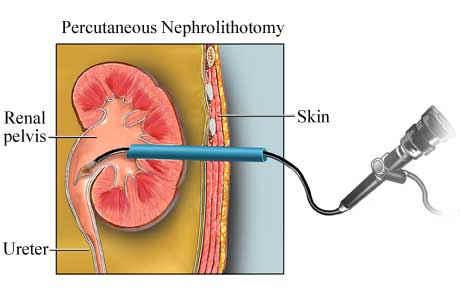 Nefrolitotomia percutanea.jpg