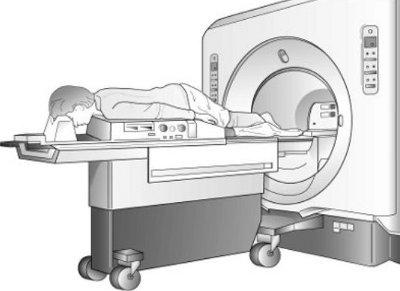 Risonanza magnetica  del seno : preparazione e risultati