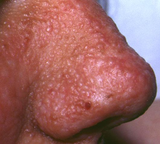 Sclerosi tuberosa21.jpeg