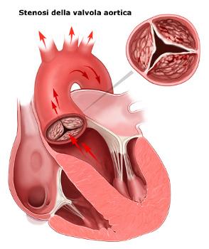 Stenosi della valvola aortica.jpg