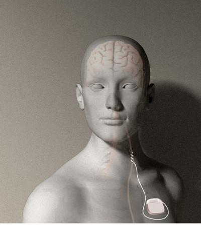 Stimolazione del nervo vago