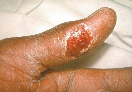 Tularemia : sintomi, cause, diagnosi e cure