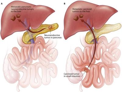 Tumori carcinoidi : sintomi, cause, complicazioni, diagnosi e cure