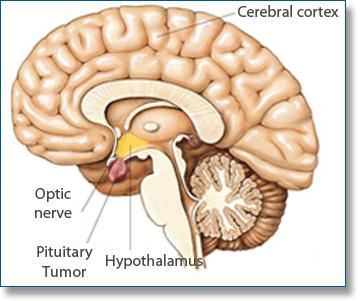 acromegalia 1.jpg