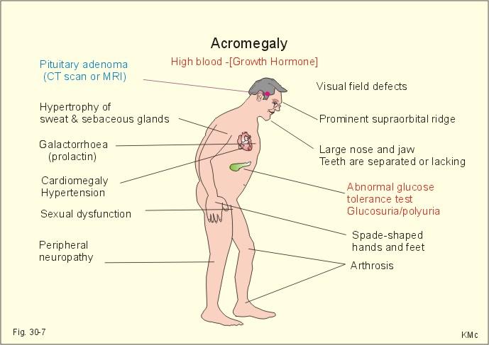 acromegalia 21.jpg