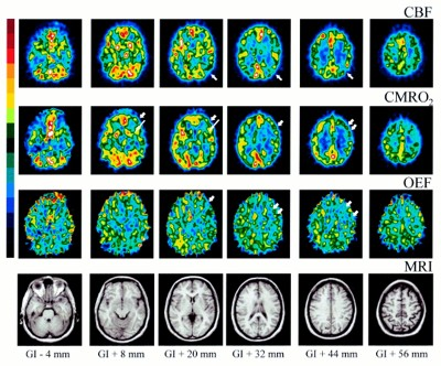 Amnesia globale transitoria : sintomi, cause e diagnosi