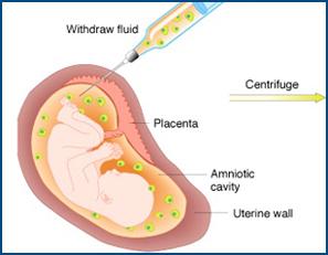 amniocentesi-es.jpg