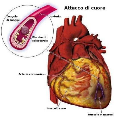 anatomia dell'attacco di cuore2.jpg