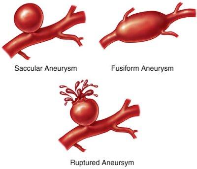 aneurisma.jpg