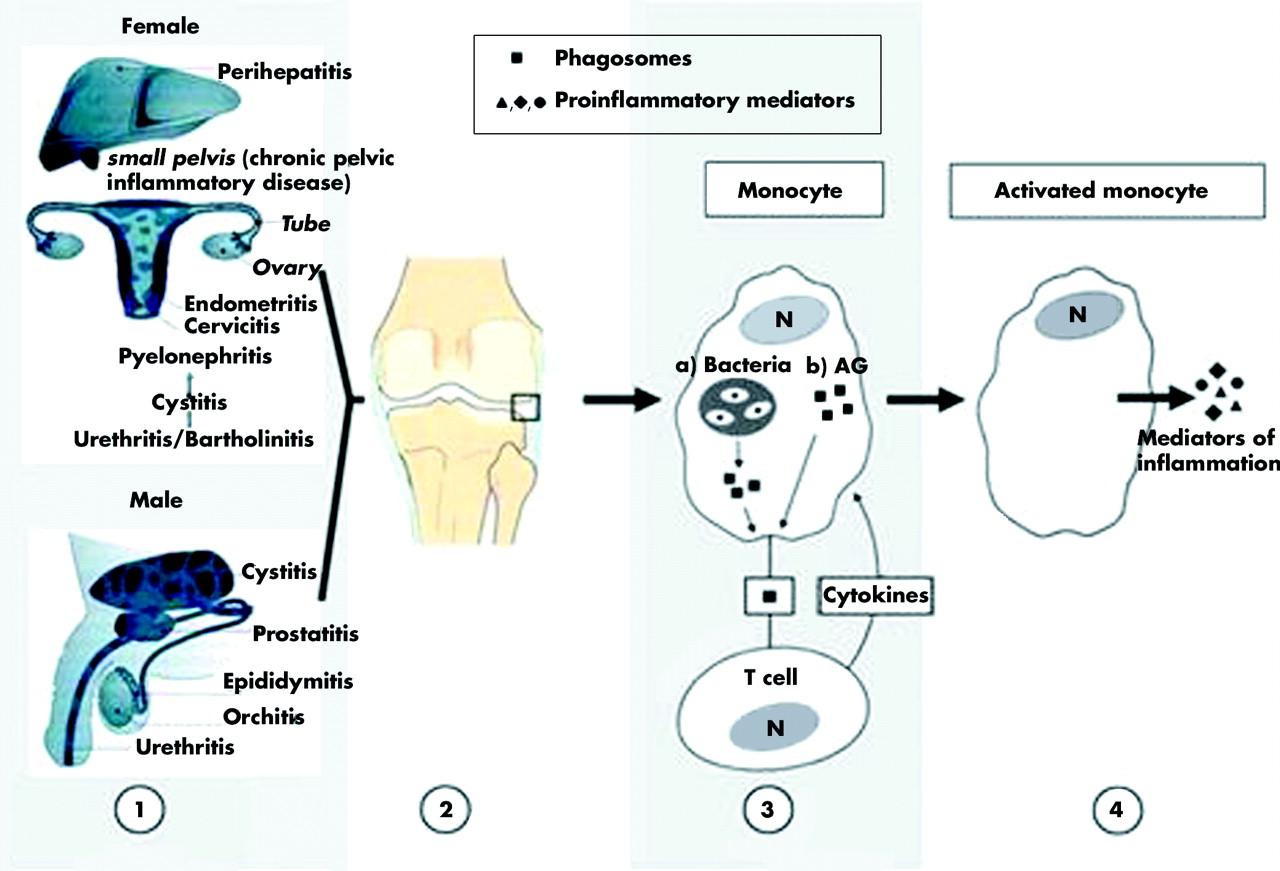 Artrite reattiva