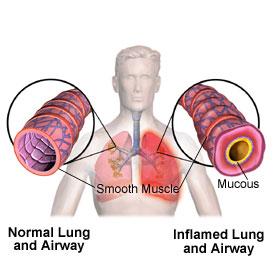 asma indotta.jpg