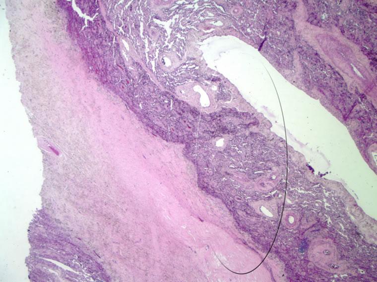 Atelettasia : sintomi, cause, diagnosi e cure