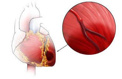 attacco di cuore3.jpg