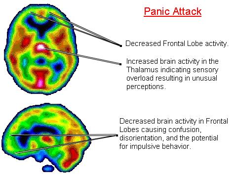 Gli attacchi di panico: sintomi, cause, complicazioni e terapie