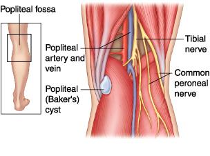 Cisti di Baker : sintomi, cause, diagnosi e cure