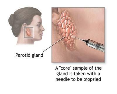 biopsia parotide.jpg