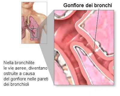 bronchiolite-schema.jpg