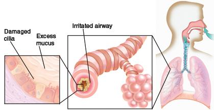 La bronchite cronica: sintomi e cause