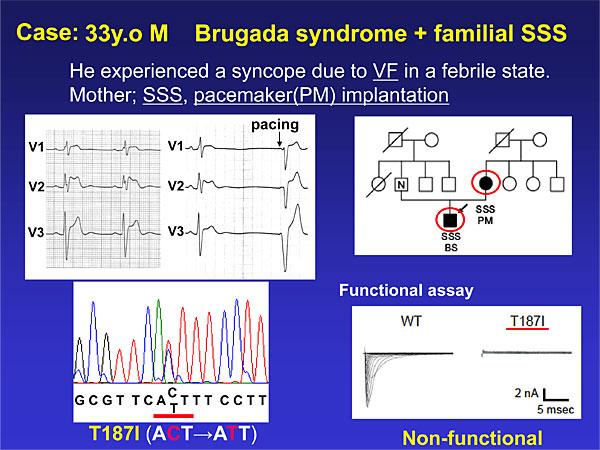 brugada sindrome1.jpg