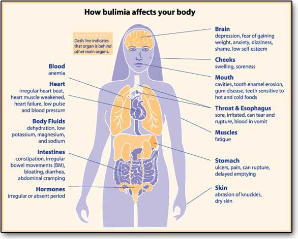 Bulimia nervosa: rimedi e sintomi di un problema grave