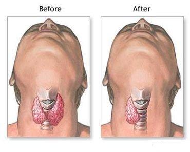 cancro della tiroide 21.jpg
