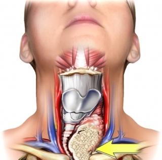 Cancro della tiroide : sintomi, cause, complicazioni e cure