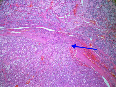 Carcinoma a cellule Hurthle